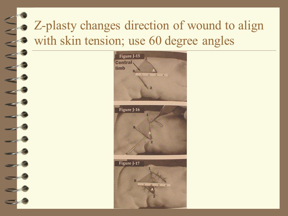 Z-plasty changes direction of wound to align with skin tension; use 60 degree angles