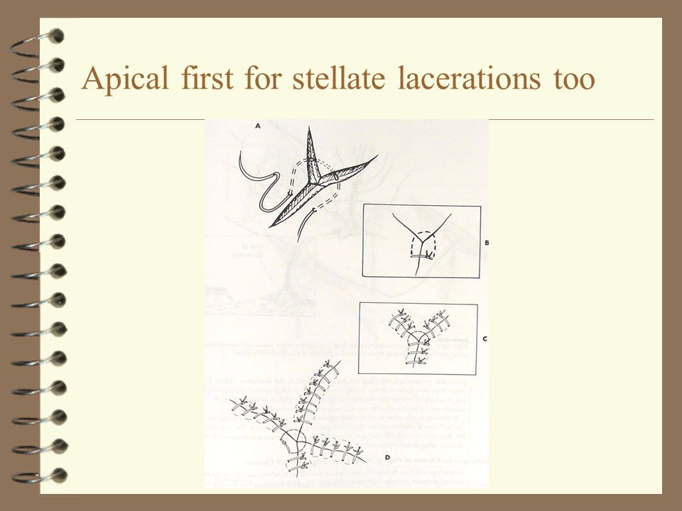 Apical first for stellate lacerations too