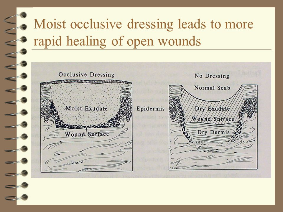 Moist occlusive dressing leads to more rapid healing of open wounds