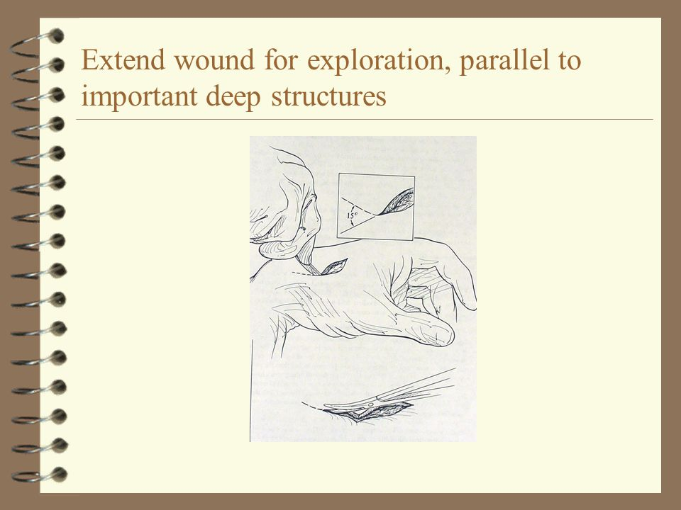 Extend wound for exploration, parallel to important deep structures