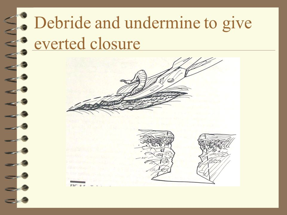 Debride and undermine to give everted closure