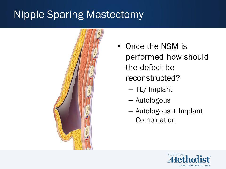 Once the NSM is performed how should the defect be reconstructed.