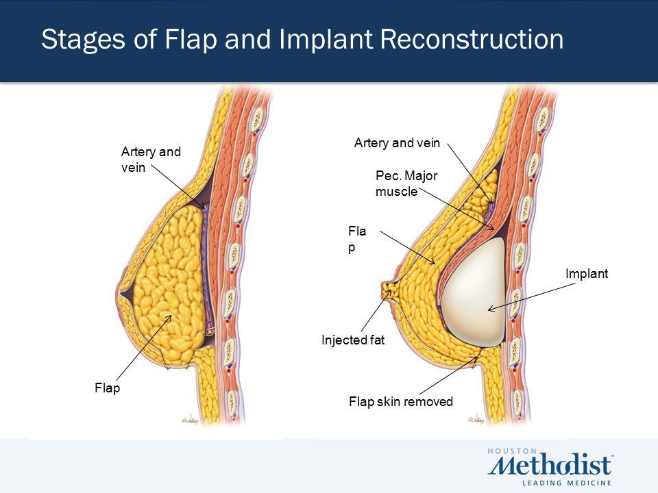 Composite Method| Post- Mastectomy Flap Pec.