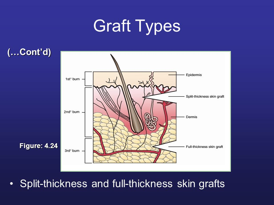 Graft Types Split-thickness and full-thickness skin grafts (…Cont'd) Figure: 4.24