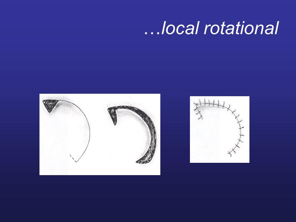 …local rotational