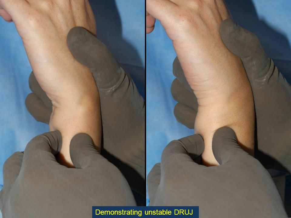 A reamer, rounded proximally to prevent misdirection, is inserted into the canal to cut a Bevel in the distal ulna.