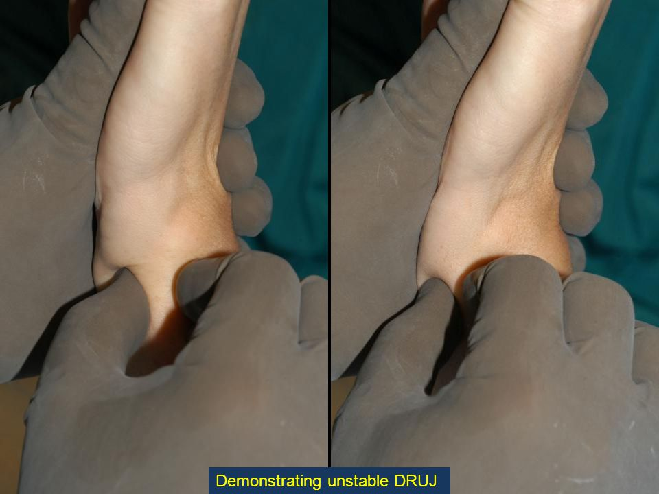The Reamer is inserted until its Stopping Plate contacts the Distal Ulna