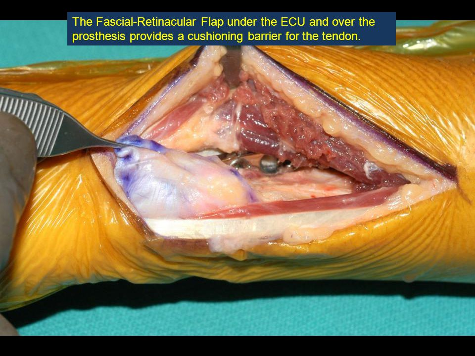 The Fascial-Retinacular Flap under the ECU and over the prosthesis provides a cushioning barrier for the tendon.
