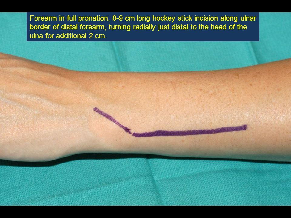 The forearm is placed in full pronation (radius at its shortest relative length), and the ulnar resection guide is inserted along the ulna and into the hemi- socket of the radial plate.