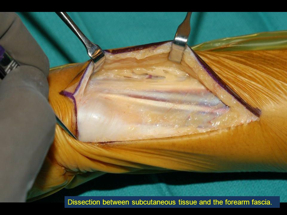 The osteotomy is made transversely through the ulna