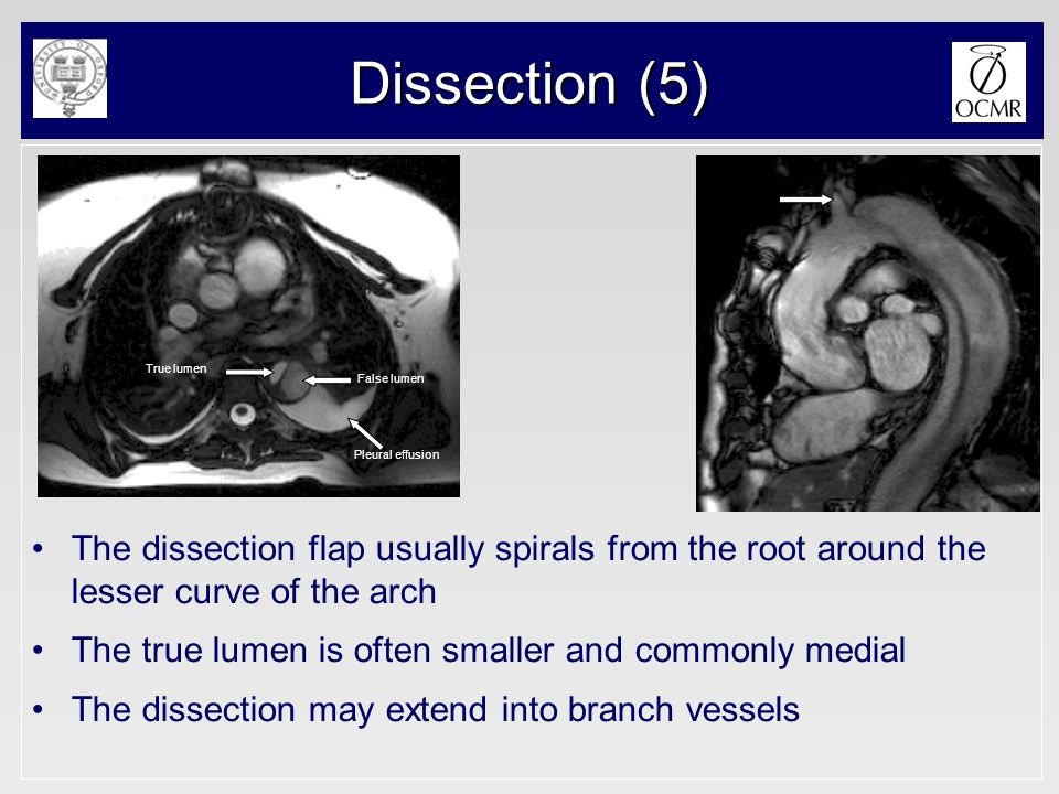 Dissection (5) The dissection flap usually spirals from the root around the lesser curve of the arch The true lumen is often smaller and commonly medi