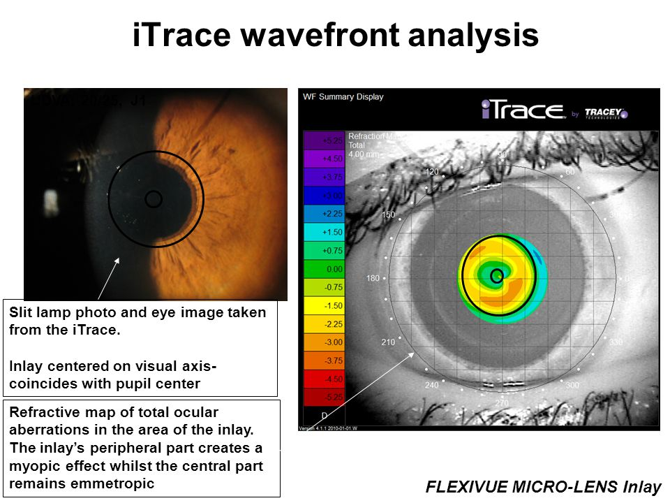 iTrace wavefront analysis UDVA: 20/25, J1 Slit lamp photo and eye image taken from the iTrace.