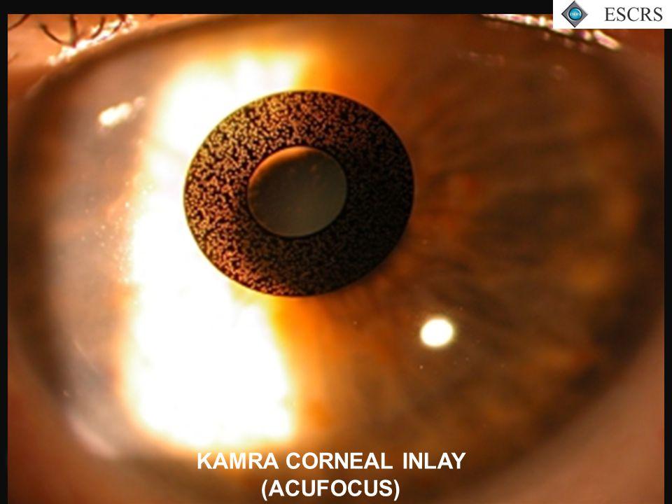 Slit Lamp KAMRA CORNEAL INLAY (ACUFOCUS)