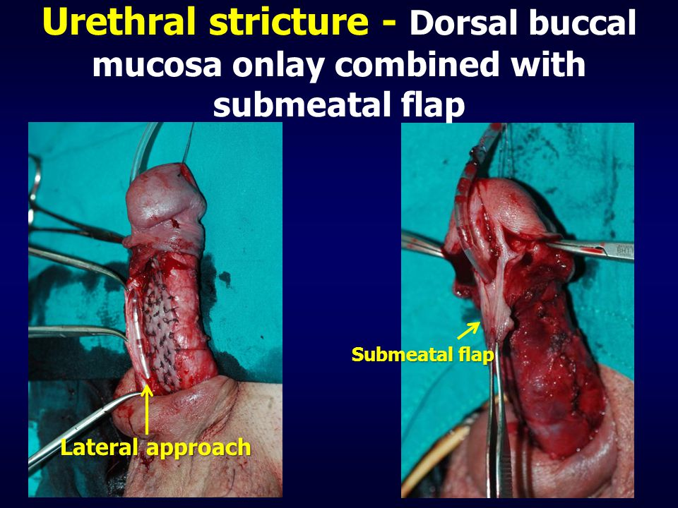Urethral stricture - Dorsal buccal mucosa onlay combined with submeatal flap Lateral approach Submeatal flap