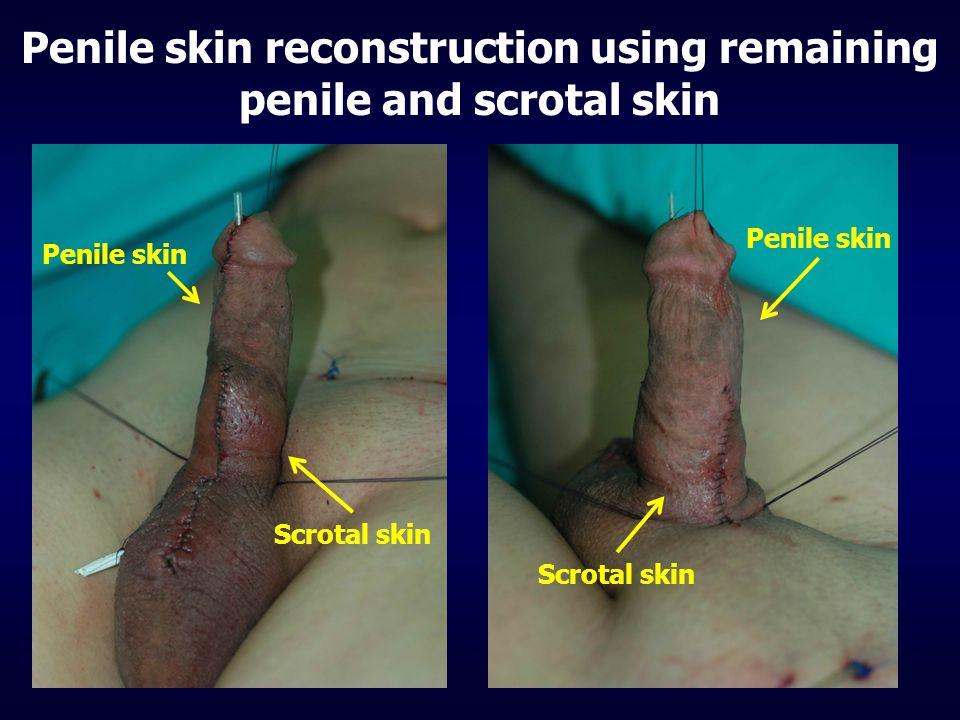 Penile skin reconstruction using remaining penile and scrotal skin Scrotal skin Penile skin