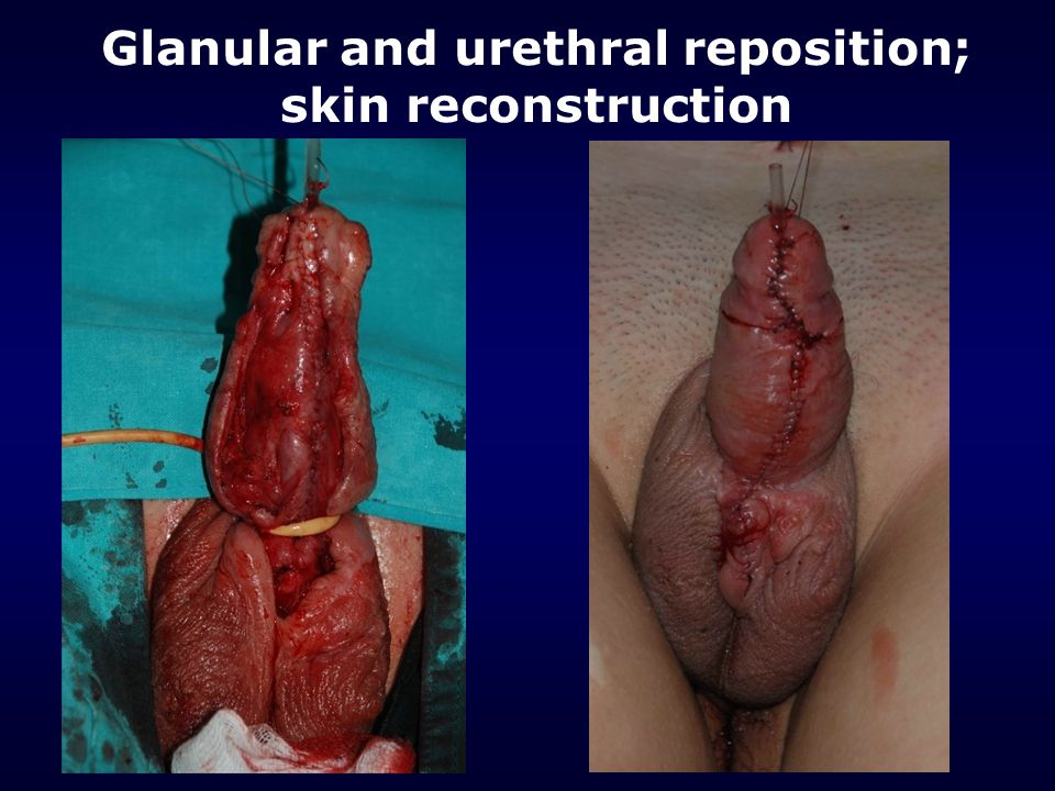 Glanular and urethral reposition; skin reconstruction