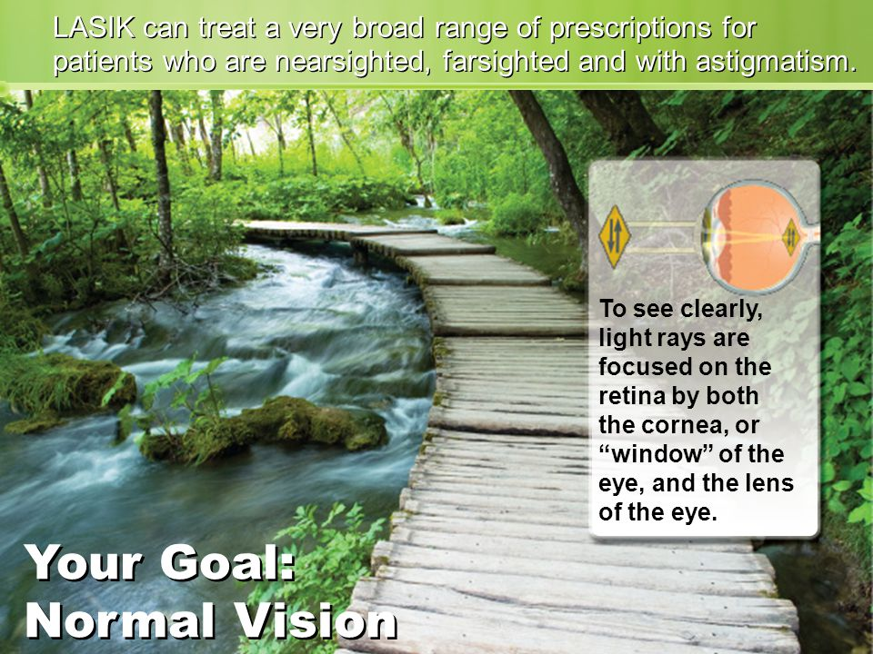LASIK can treat a very broad range of prescriptions for patients who are nearsighted, farsighted and with astigmatism.