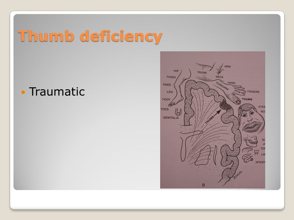 Thumb deficiency Traumatic