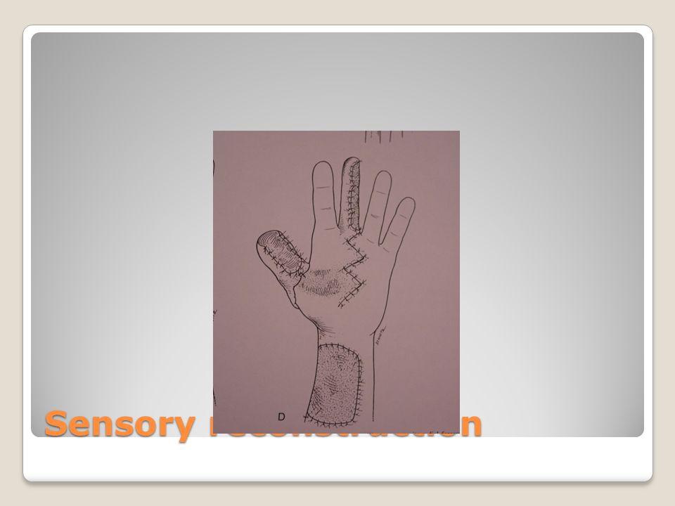 Sensory reconstruction