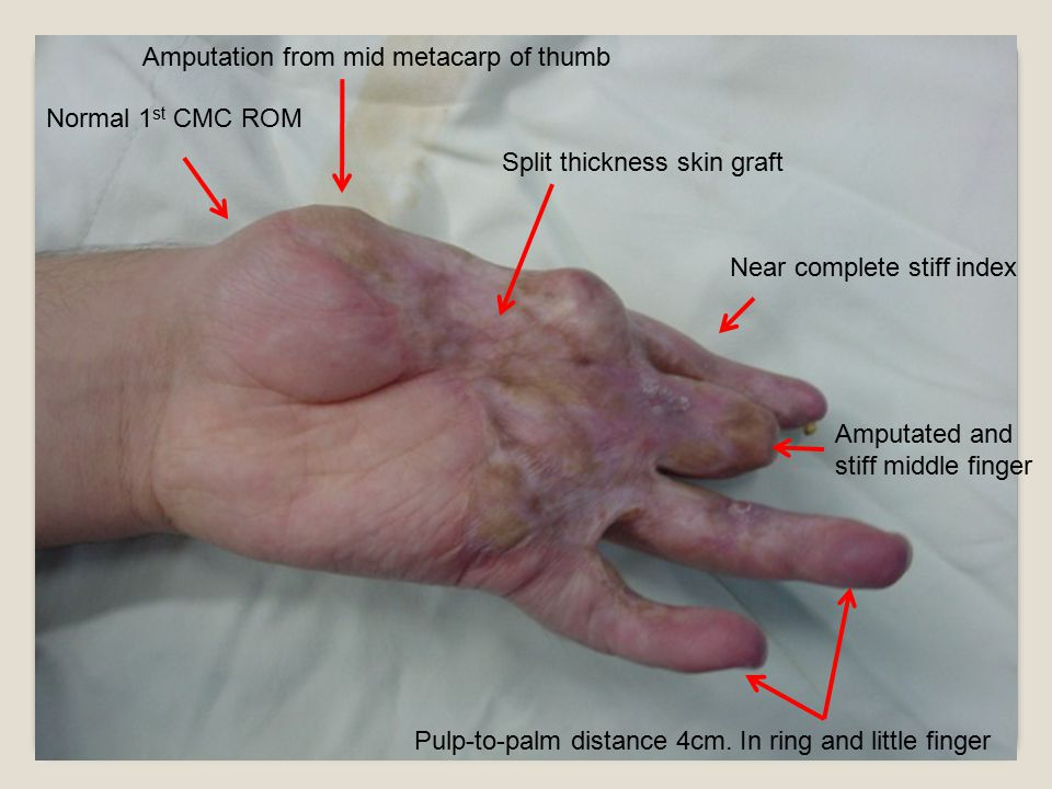 Normal 1 st CMC ROM Amputation from mid metacarp of thumb Split thickness skin graft Near complete stiff index Amputated and stiff middle finger Pulp-