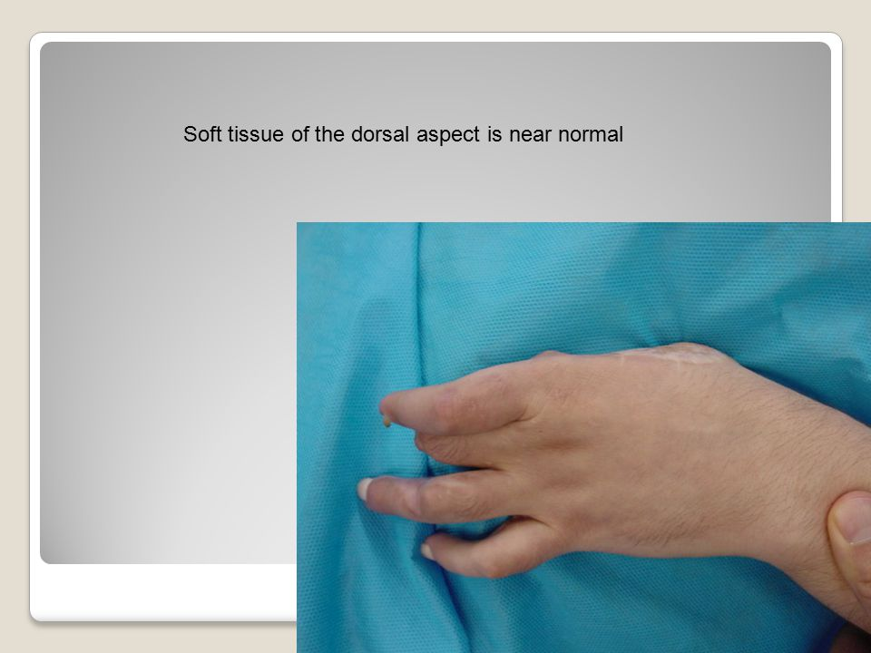 Soft tissue of the dorsal aspect is near normal