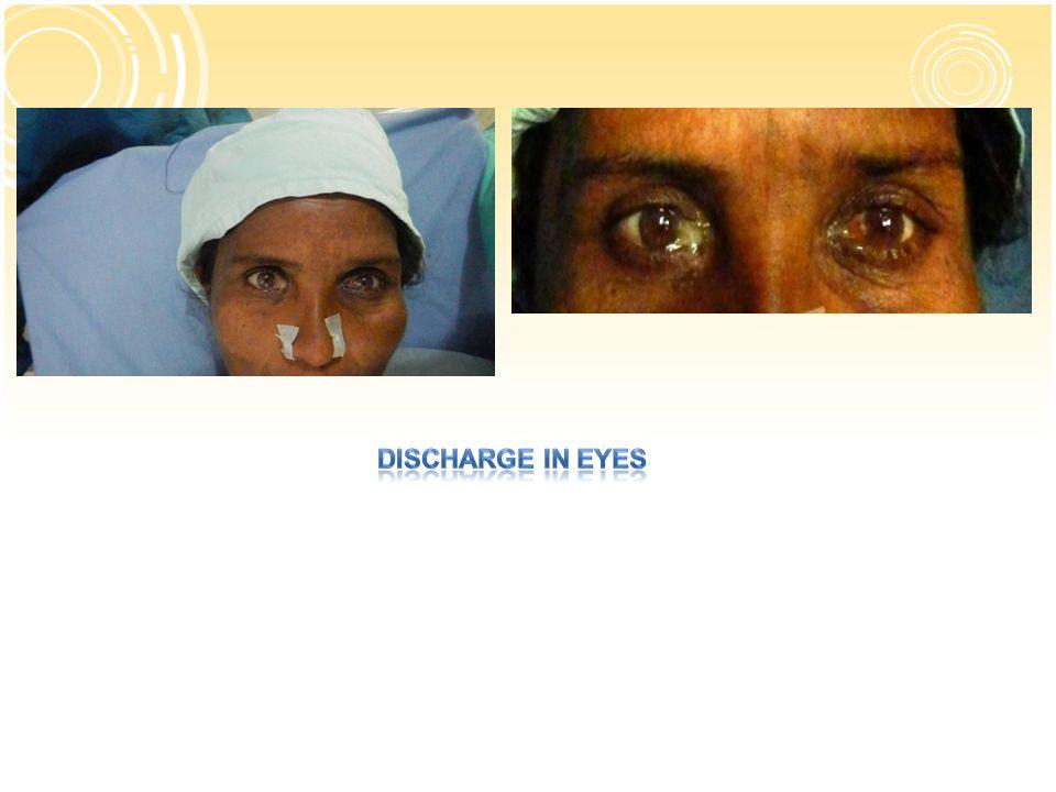Intraoperative bleeding % of casesstudy 27.5%Mirzaman etal 13%Adravani etal 6.2%Gazemund K 0.6%Akhund 16.2%Present study