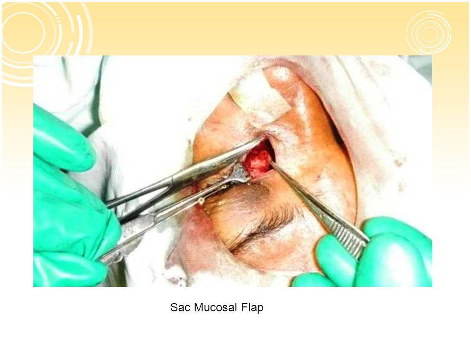 Sac Mucosal Flap
