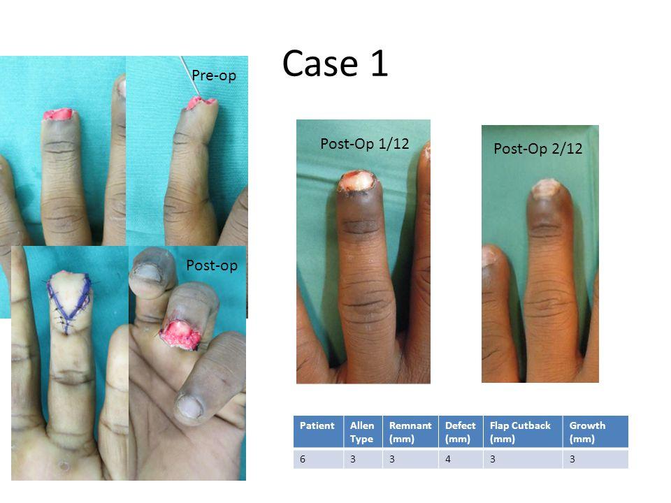 Case 1 PatientAllen Type Remnant (mm) Defect (mm) Flap Cutback (mm) Growth (mm) 633433 Pre-op Post-Op 2/12 Post-Op 1/12 Post-op