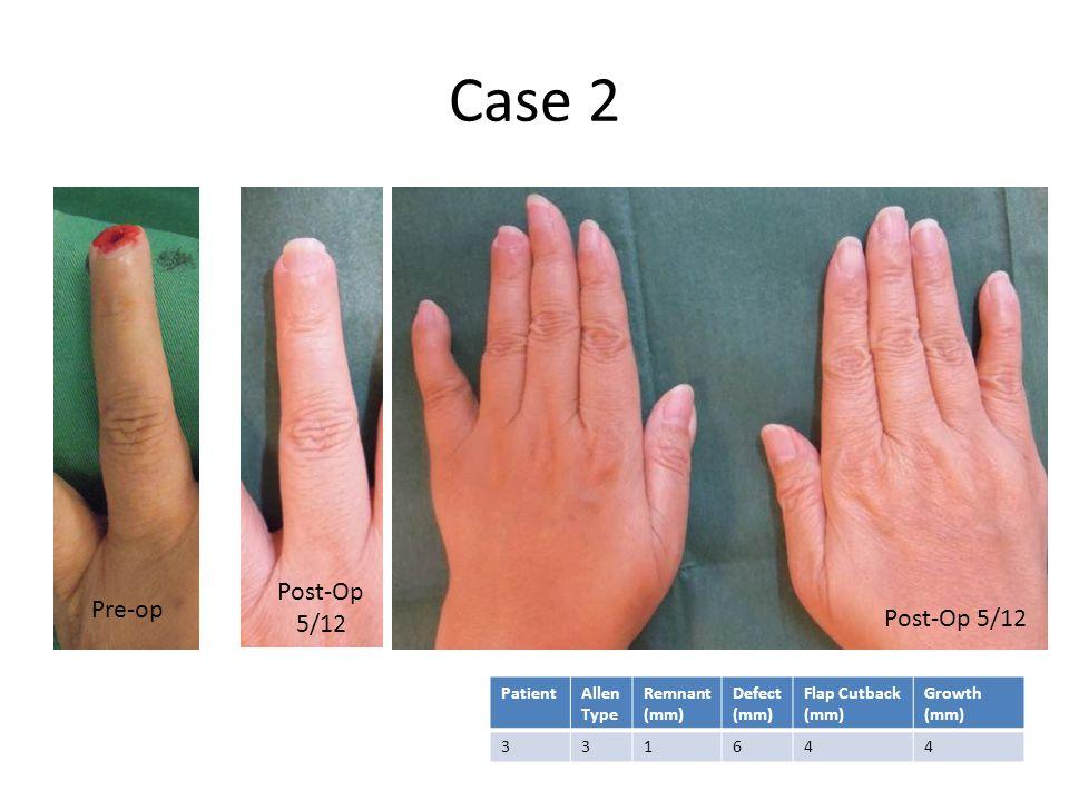Case 2 Pre-op Post-Op 5/12 PatientAllen Type Remnant (mm) Defect (mm) Flap Cutback (mm) Growth (mm) 331644