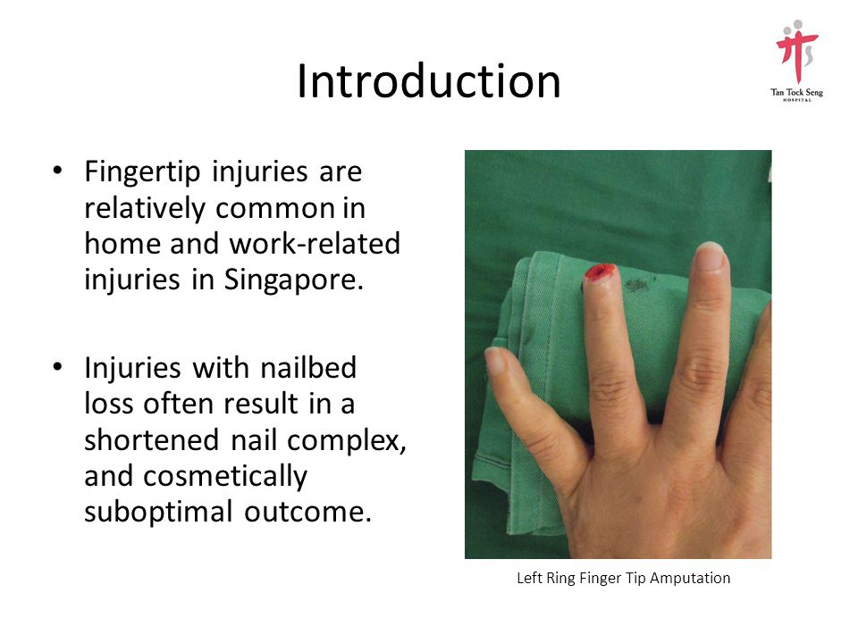 Introduction Fingertip injuries are relatively common in home and work-related injuries in Singapore.