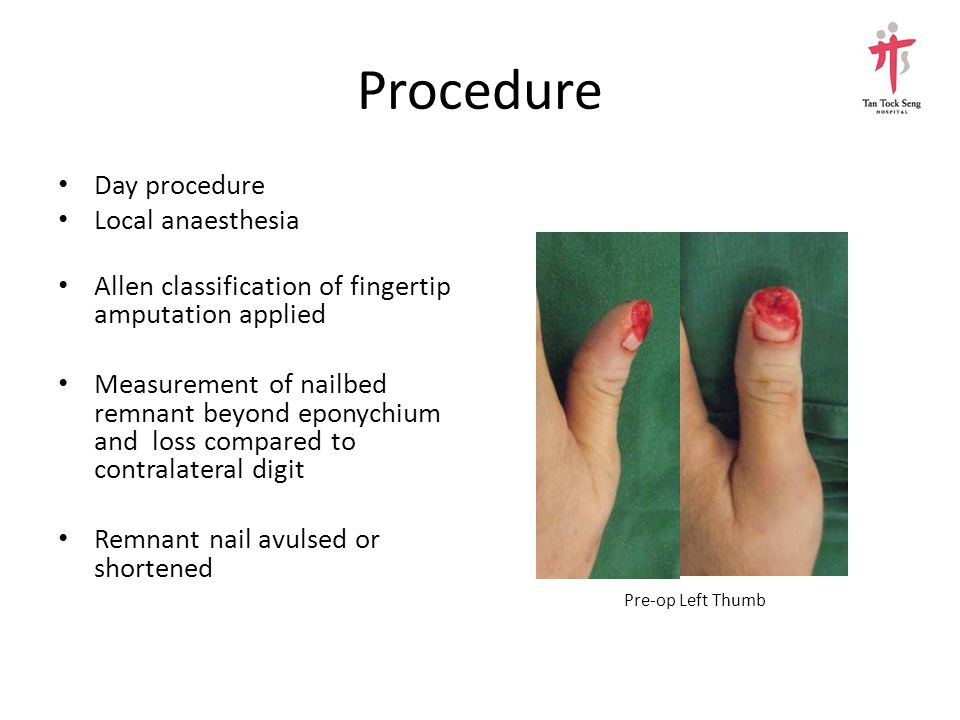Procedure Day procedure Local anaesthesia Allen classification of fingertip amputation applied Measurement of nailbed remnant beyond eponychium and lo
