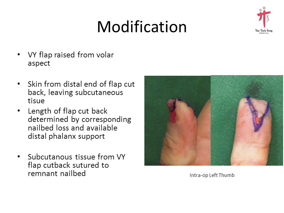 Closure VY flap secured with nylon suture 5/0 Absorbable suture 6/0 to nailbed Artificial nail inset Non-absorbable sutures removed after 2 weeks Post-op Left ThumbPre-op Left Thumb