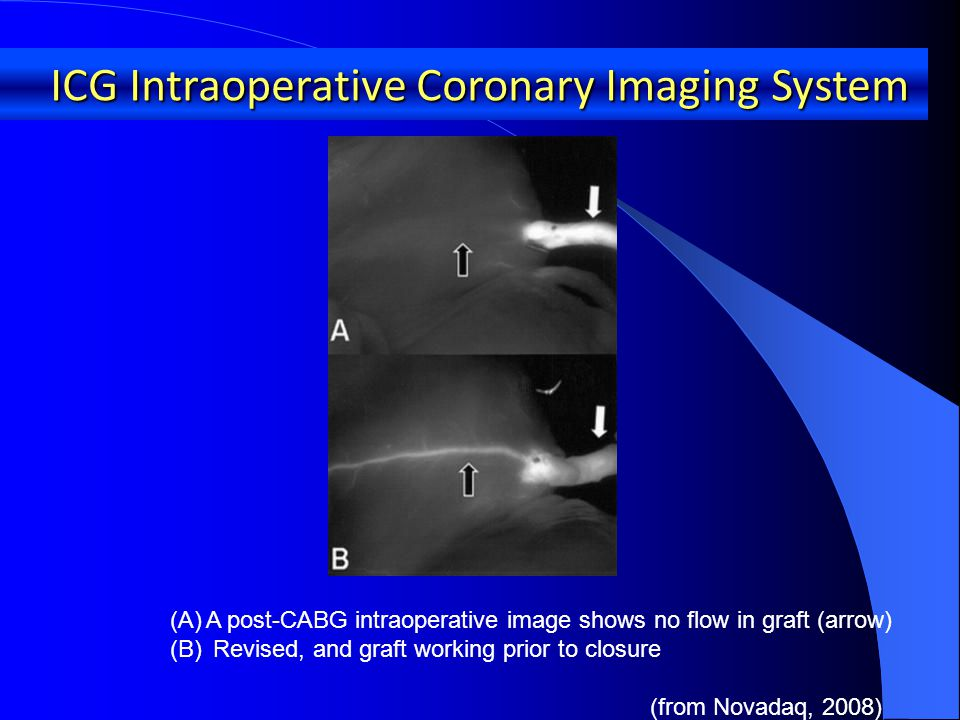 (A)A post-CABG intraoperative image shows no flow in graft (arrow) (B) Revised, and graft working prior to closure (from Novadaq, 2008) ICG Intraoperative Coronary Imaging System