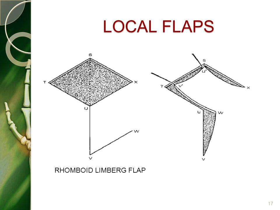 LOCAL FLAPS 17 RHOMBOID LIMBERG FLAP