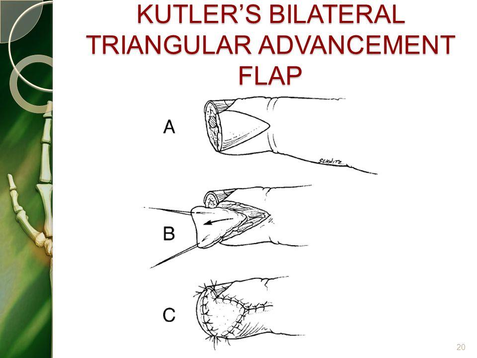KUTLER'S BILATERAL TRIANGULAR ADVANCEMENT FLAP 20