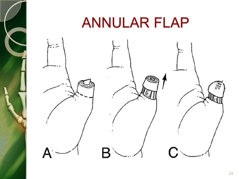 ANNULAR FLAP 24