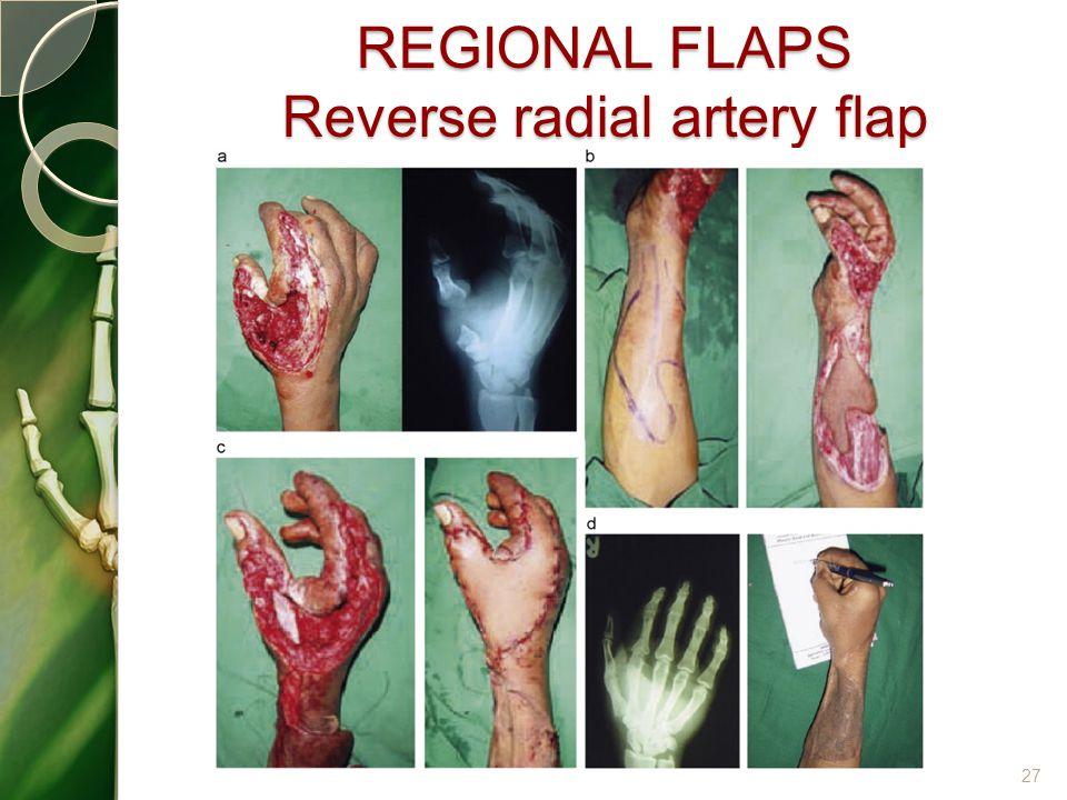 REGIONAL FLAPS Reverse radial artery flap 27