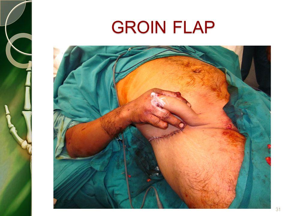 GROIN FLAP 31
