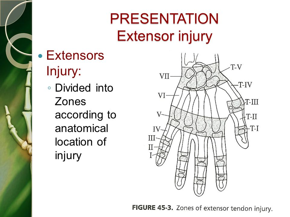 PRESENTATION Extensor injury Extensors Injury: ◦ Divided into Zones according to anatomical location of injury 38