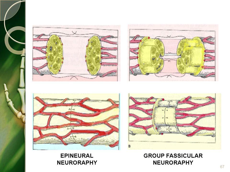 67 EPINEURAL NEURORAPHY GROUP FASSICULAR NEURORAPHY