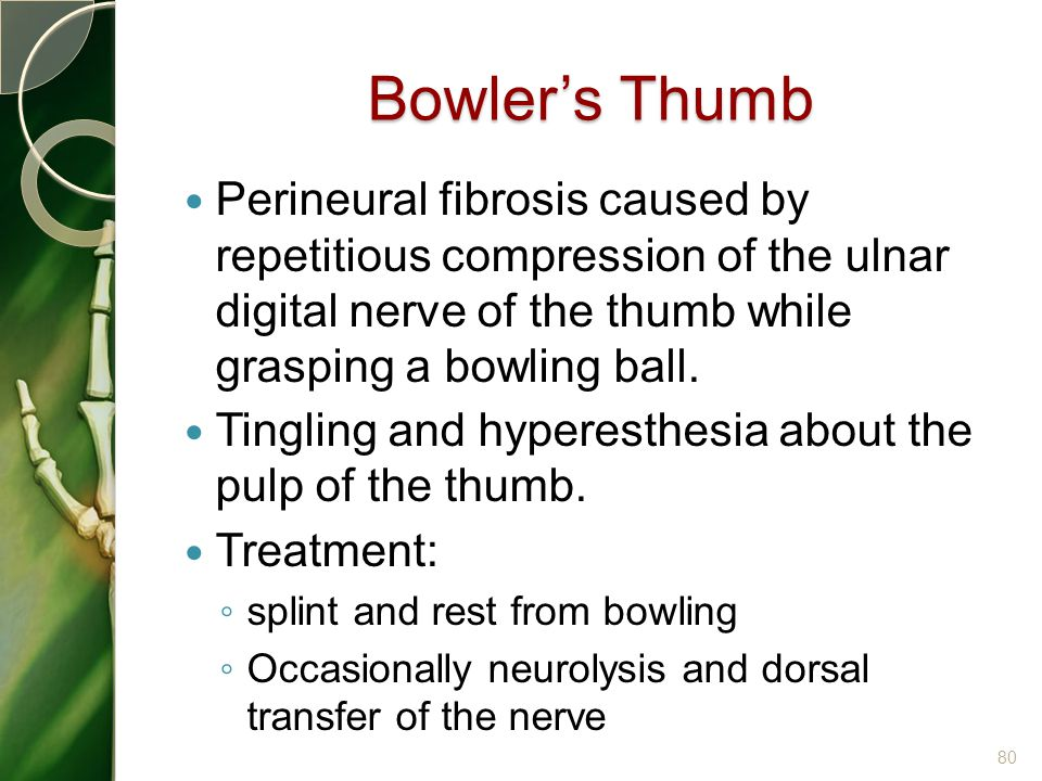 Bowler's Thumb Perineural fibrosis caused by repetitious compression of the ulnar digital nerve of the thumb while grasping a bowling ball. Tingling a