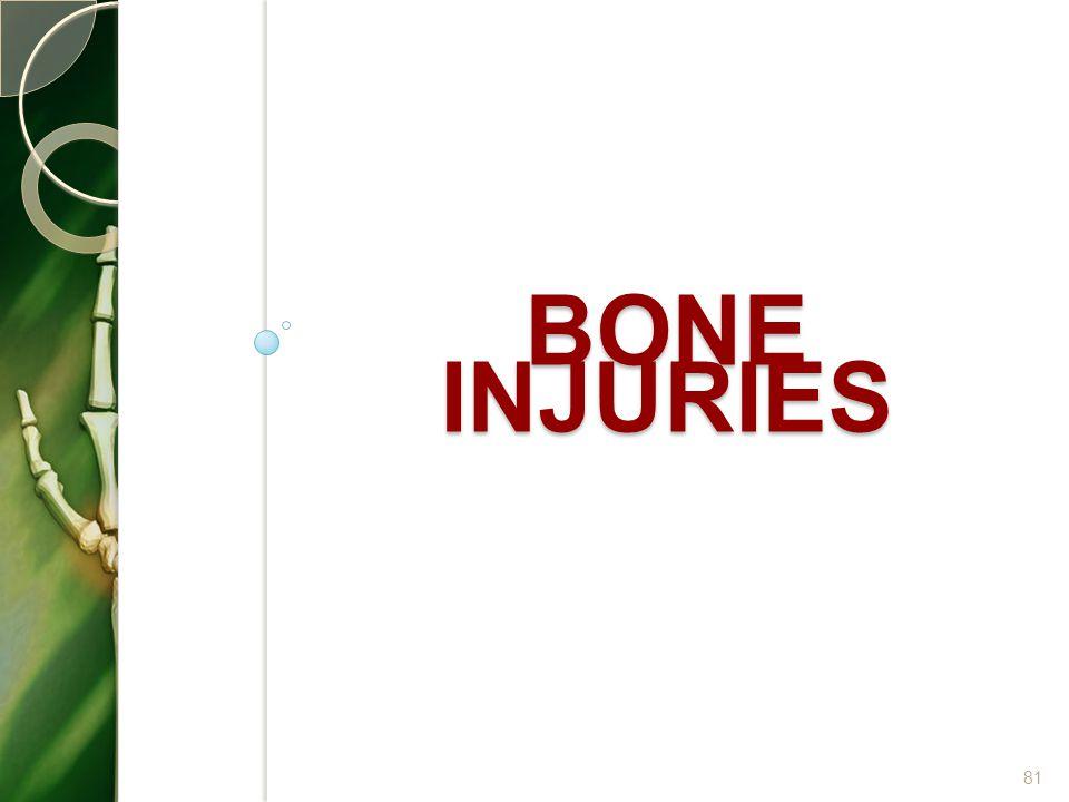 BONE INJURIES 81