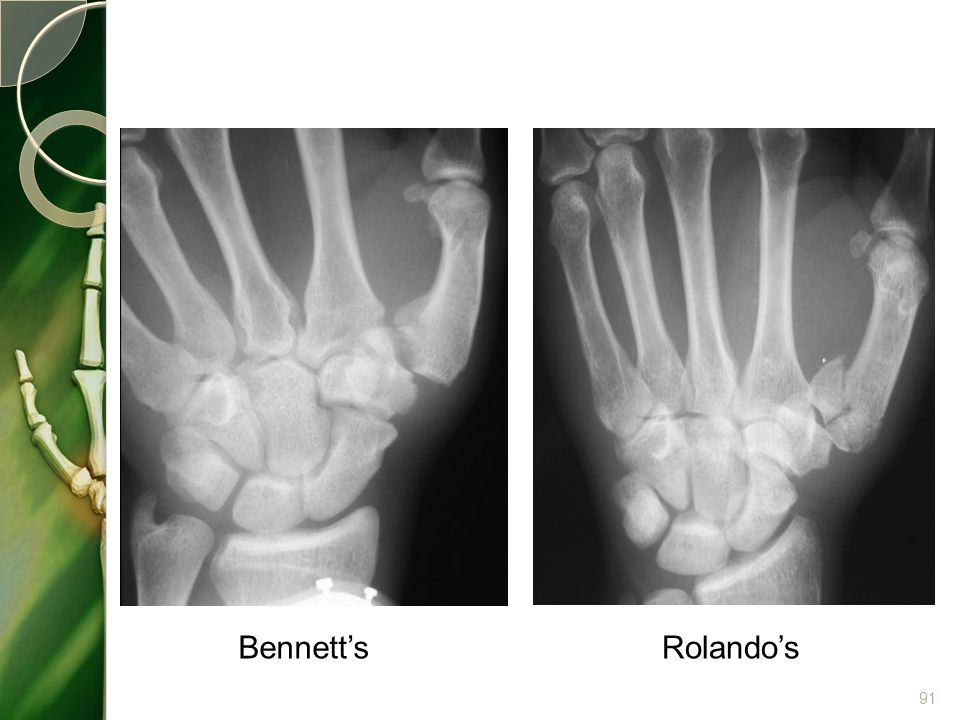 Bennett'sRolando's 91