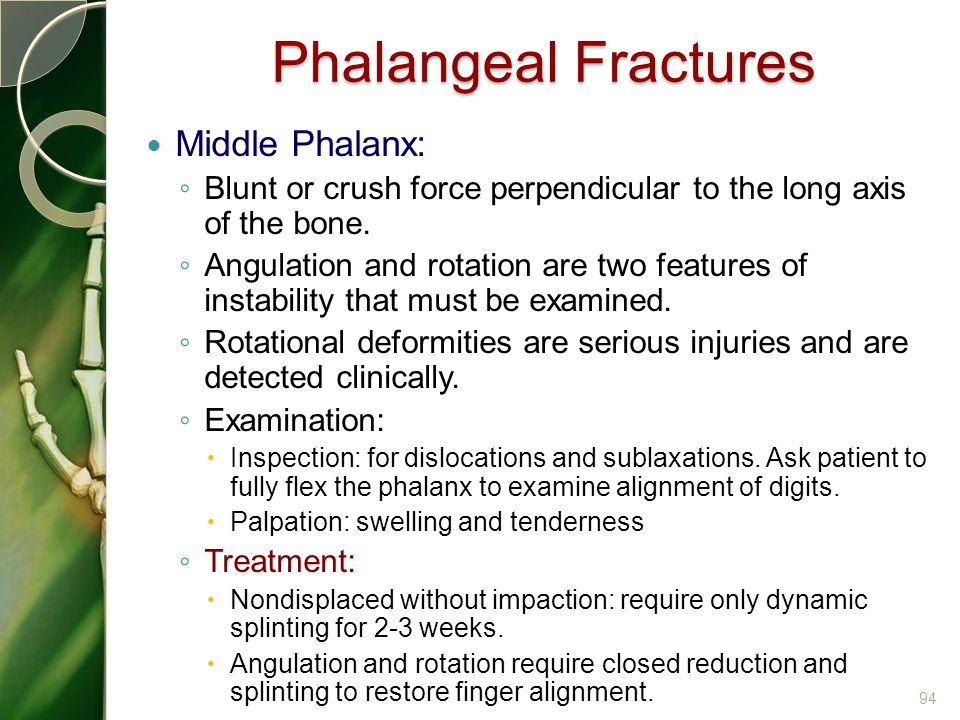 Phalangeal Fractures Middle Phalanx: ◦ Blunt or crush force perpendicular to the long axis of the bone. ◦ Angulation and rotation are two features of