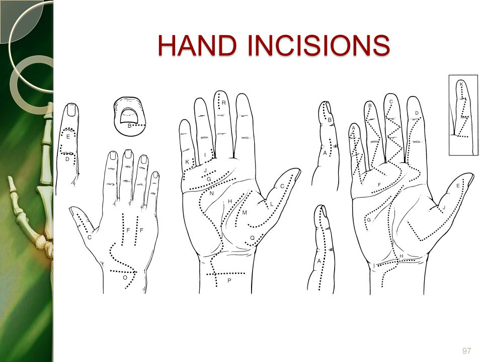 HAND INCISIONS 97