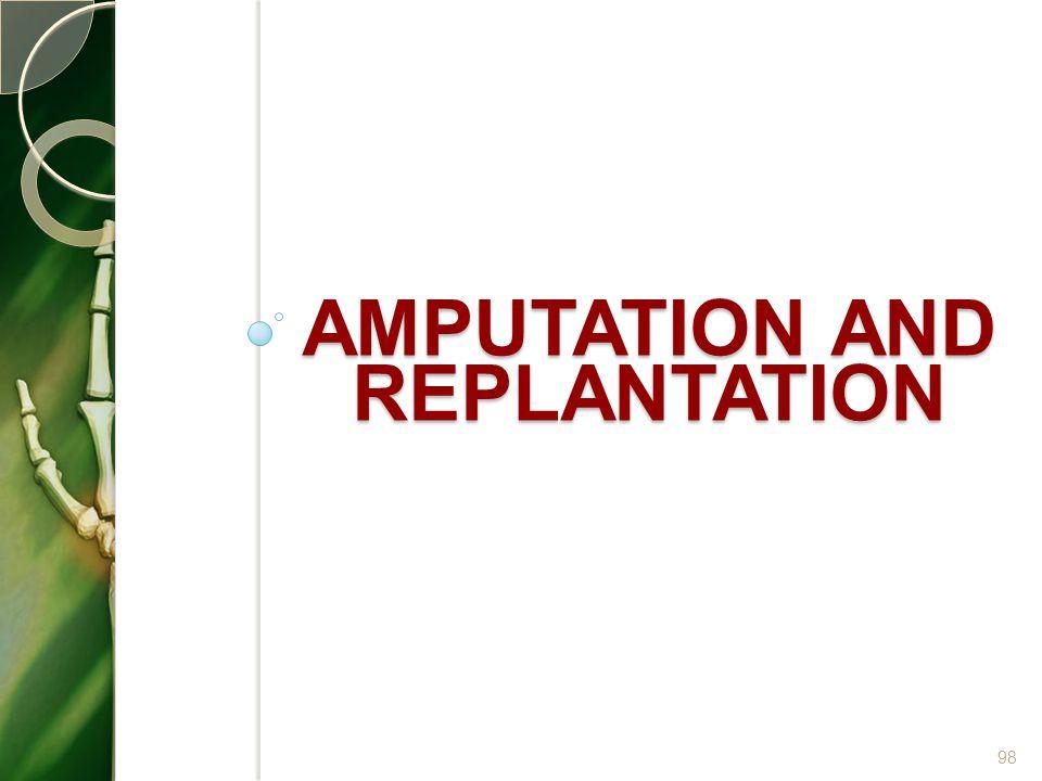AMPUTATION AND REPLANTATION 98