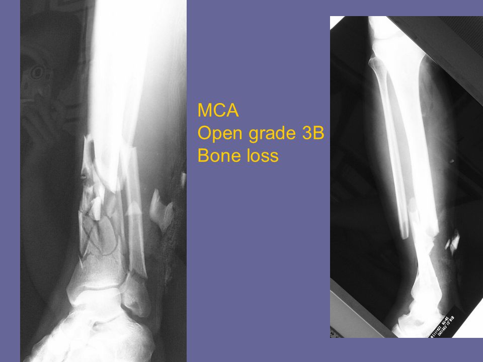 MCA Open grade 3B Bone loss