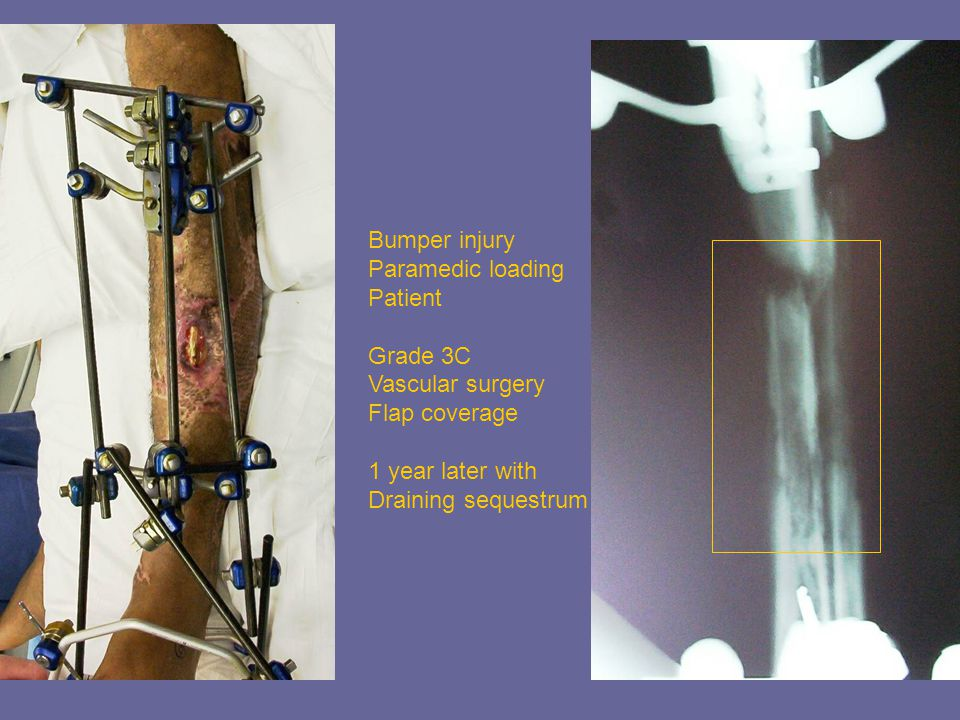 Bumper injury Paramedic loading Patient Grade 3C Vascular surgery Flap coverage 1 year later with Draining sequestrum