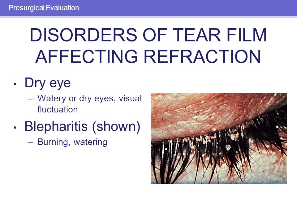 Dry eye –Watery or dry eyes, visual fluctuation Blepharitis (shown) –Burning, watering Presurgical Evaluation DISORDERS OF TEAR FILM AFFECTING REFRACT