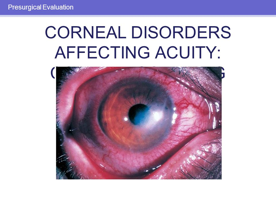 CORNEAL DISORDERS AFFECTING ACUITY: CORNEAL SCARRING Presurgical Evaluation